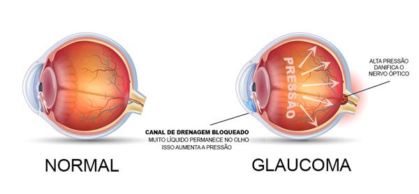 Foto de Alcântara vai receber Mutirão do Glaucoma dia 29 de setembro